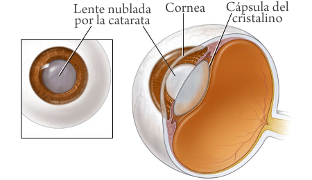 cataratas de ojos