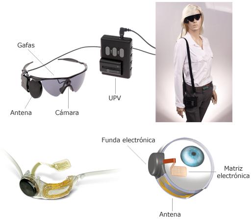 implante artificial de retina