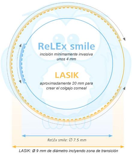 cirugia relex smile con visumax